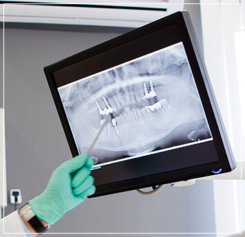 dentist pointing to x-ray of patient's teeth