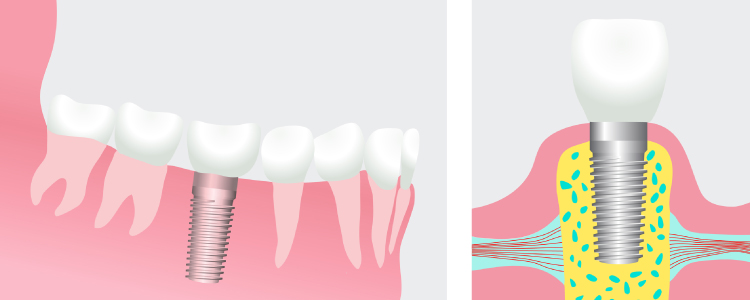Artistic rendering of a dental implant with the post fused to the jawbone on the left and the implant topped with a dental crown on the right
